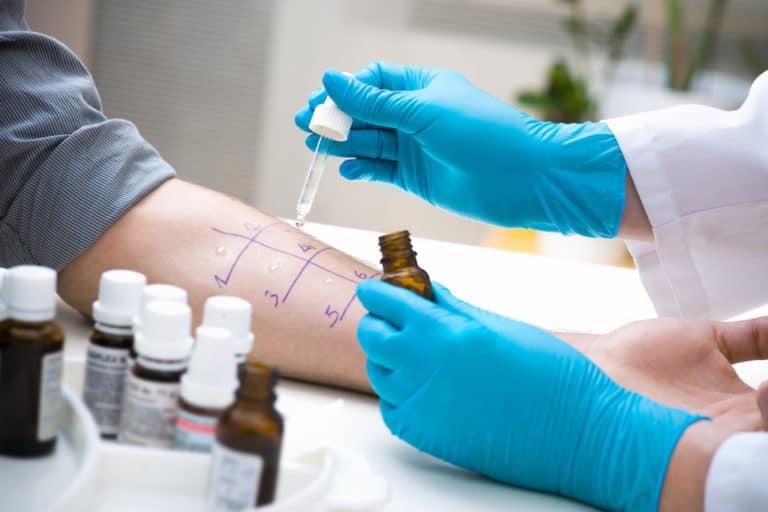 allergietest pimpette handschuhe arzt