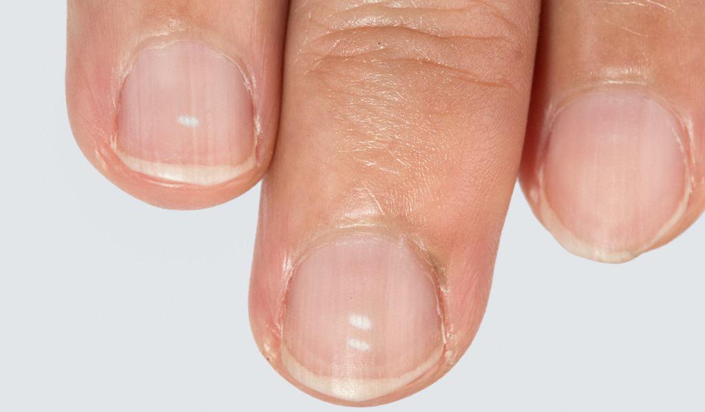 weiße flecken nagel finger