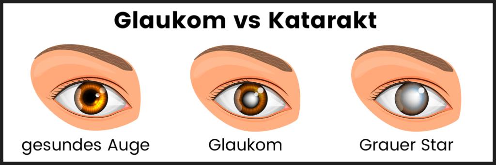Glaukom Katarakt Grauer Star katawan