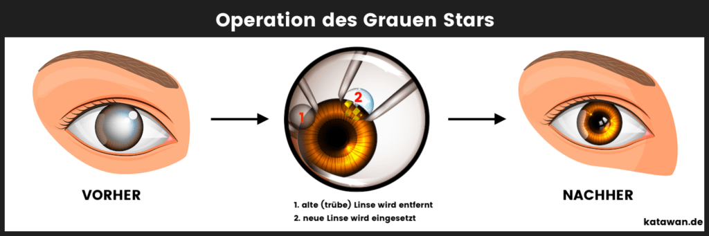 Grauer Star Operation Katarakt Linse wird entfern