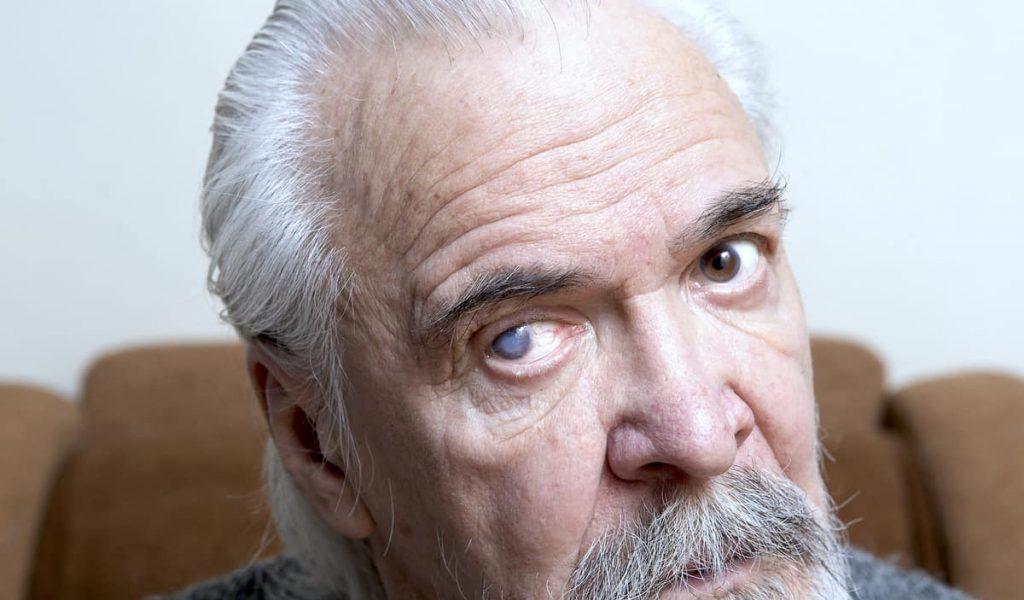 Grauer Star Katarakt alter Mann Auge
