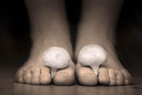 Nagelpilz Füße mit echtem Pilz