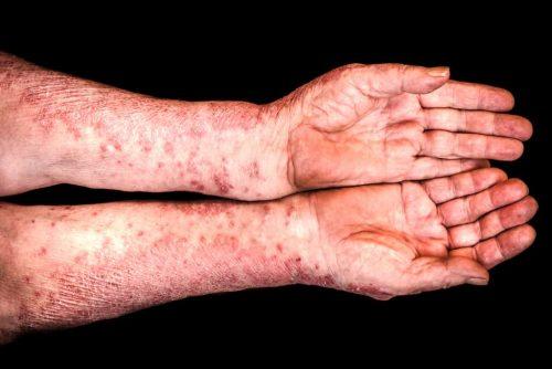 Schuppenflechte Psoriasis auf beiden Armen
