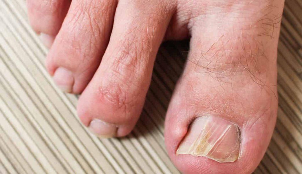 brüchige nägel auf den füßen katawan
